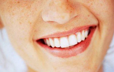belles-dents-sante-sourire